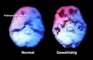 fig3-Gehirn-mit-Loechern