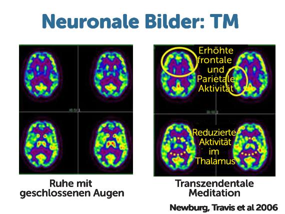 neural-imaging-copy
